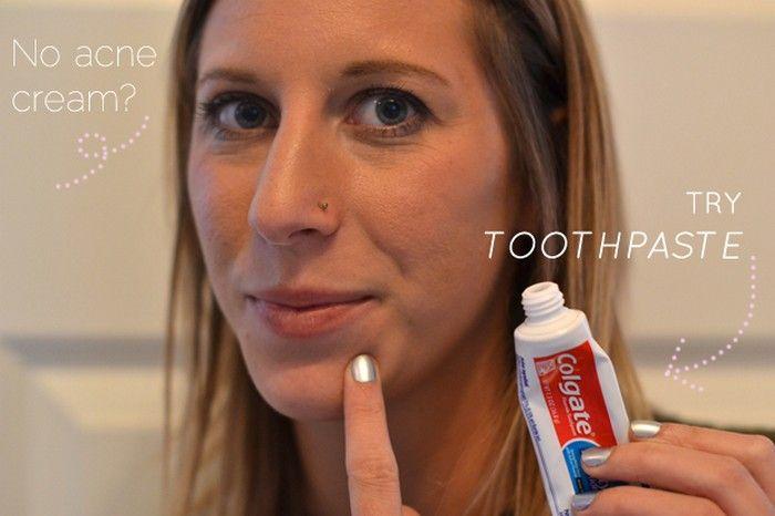 Ատամի մածուկի օգտագործման 5 միջոց` գեղեցիկ լինելու