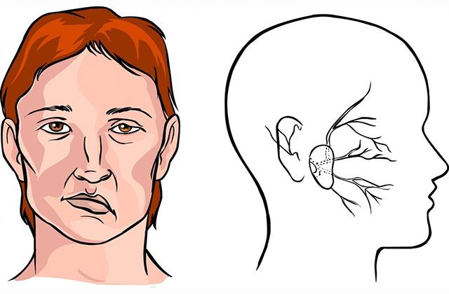 10 վտանգավոր նշան, որ «լուռ» կաթված եք տանում