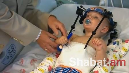 Ավստրալացի բժիշկները փրկել են երախայի, ում գլուխը գրեթե առանձնացած է եղել մարմնից