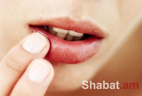 Ինչպե՞ս արագ բուժել շուրթերի հերպեսը