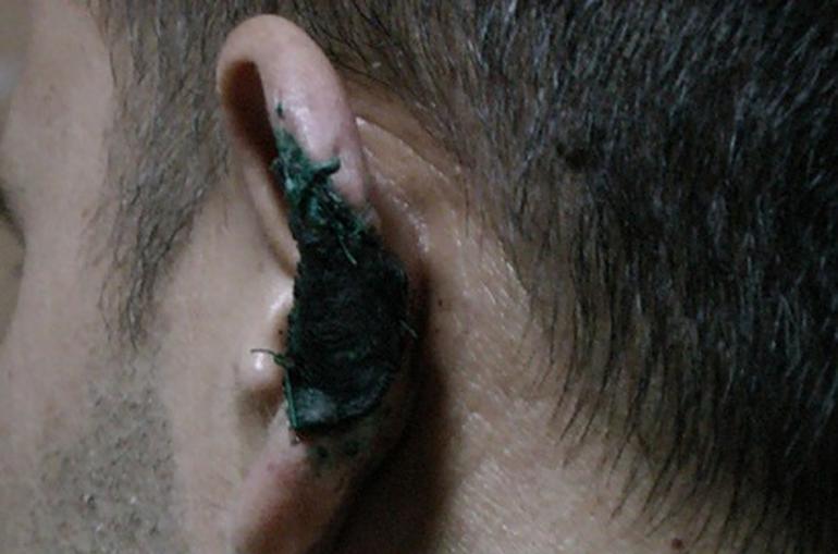 Իջևանում վիճաբանության ժամանակ կծել են տղամարդու ականջը. «Shamshyan.com»