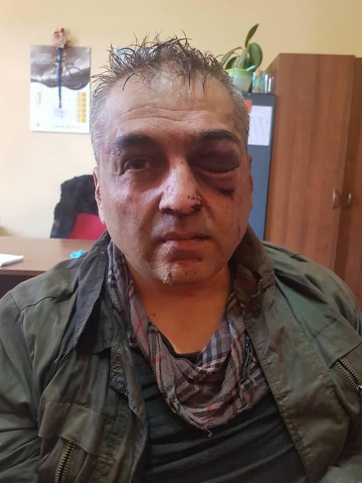 «HSBC բանկի վրա հարձակման հետևանքով 1 մարդ զոհվել է, 2-ը՝ վիրավորվել. նոր մանրամասներ»