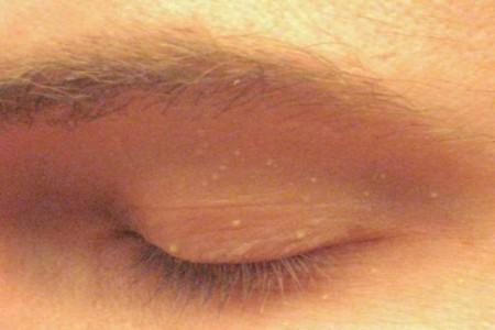 Ինչպես ազատվել մաշկի վրայի ճարպային կետերից բնական միջոցներով