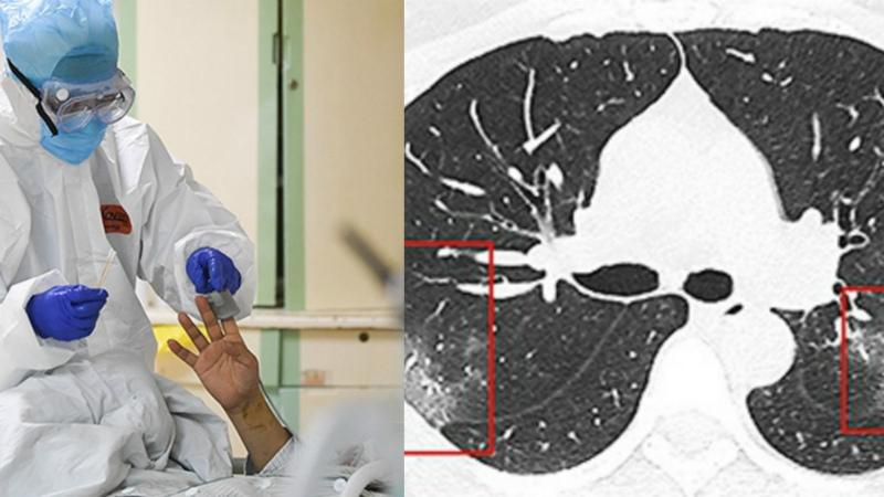Չինացի բժիշկները ներկայացրել են,թե ինչպիսին են կորոնավիրուսով հիվանդի թոքերը
