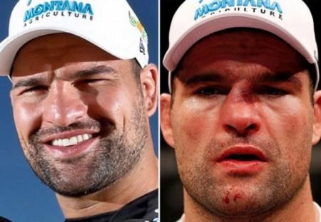 «Մարտեր առանց կանոնների». մարզիկների դեմքերը մարտերից առաջ և հետո (լուսանկարներ)