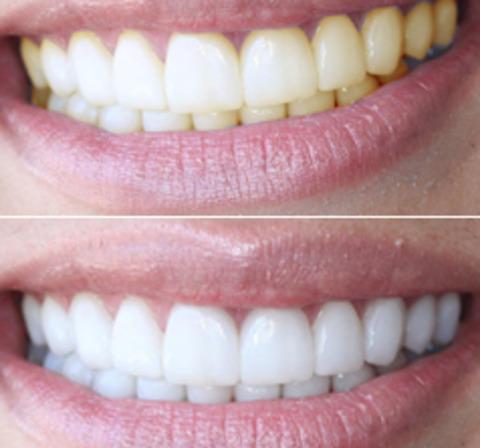 Քրքումով բաղադրատոմս՝ ատամները սպիտակեցնելու համար