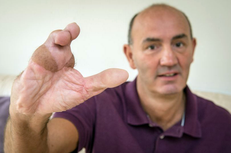 Տղամարդու ձեռքին ոտքերի մատներն են փոխպատվաստվել (լուսանկարներ)