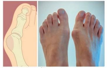 Ինչպես ազատվել ոտքերի կոշտուկներից կամ «ոսկրերից»