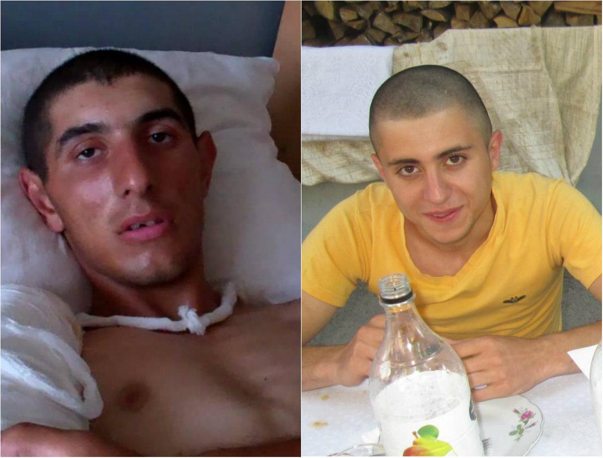 Արցախում վիրավորված զինծառայողներից մեկն այս շաբաթ կվիրահատվի, իսկ մյուսն արդեն քայլում է