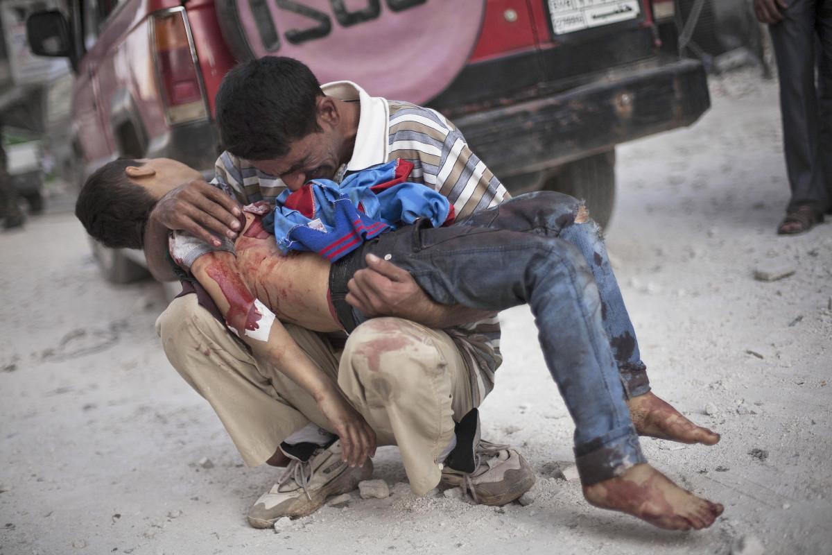 Սիրիայում օդային հարվածների հետևանքով հոսպիտալում 27 մարդ է զոհվել