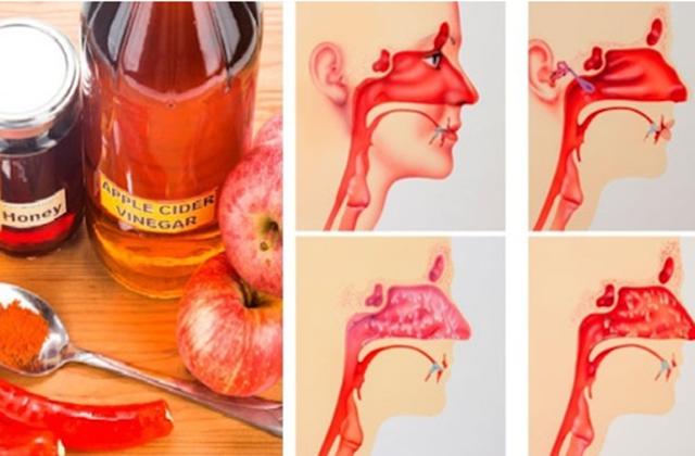 Խնձորի քացախը՝ քթի խոռոչի բորբոքումների դեմ