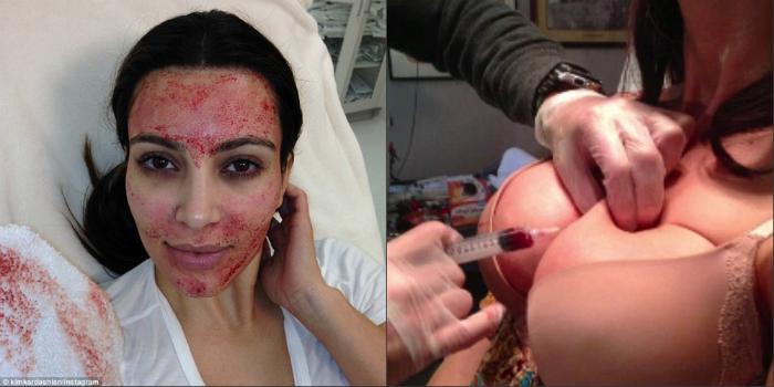 Կրծքերը մեծացնելու համար որոշ կանայք սեփական արյունն են ներարկում (լուսանկարներ)