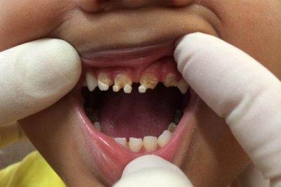 Ատամնաբույժը հրապարակել է «Coca-cola»-ից և «Pepsi»-ից վնասված ատամների լուսանկար