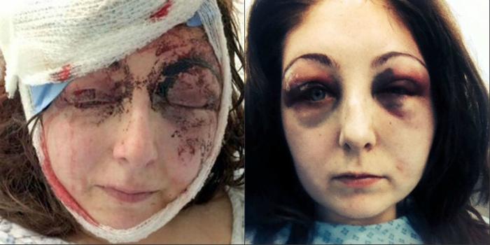 Խանդոտ տղամարդը կնոջ գլխով կոտրել է հեռուստացույցը (լուսանկարներ)