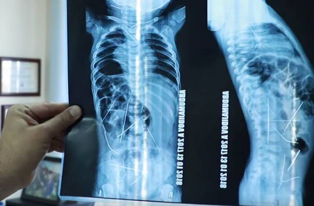 Տաշքենդի հիվանդանոցներից մեկի բժիշկները 16 պողպատե ասեղ են հանել 11 ամսական երեխայի մարմնից