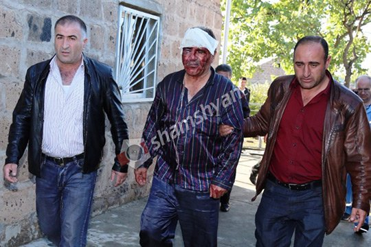 Դաժան ավազակային հարձակում Երևանում
