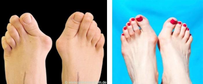 Ինչպես ազատվել ոտքերի ոսկրային կոշտուկներից
