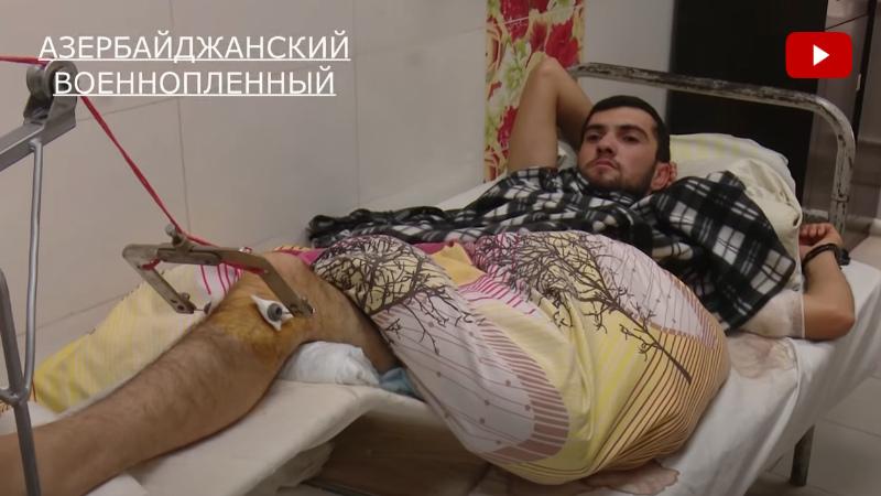 Հայ բժիշկները վիրահատել են ադրբեջանցի ռազմագերուն. (տեսանյութ)