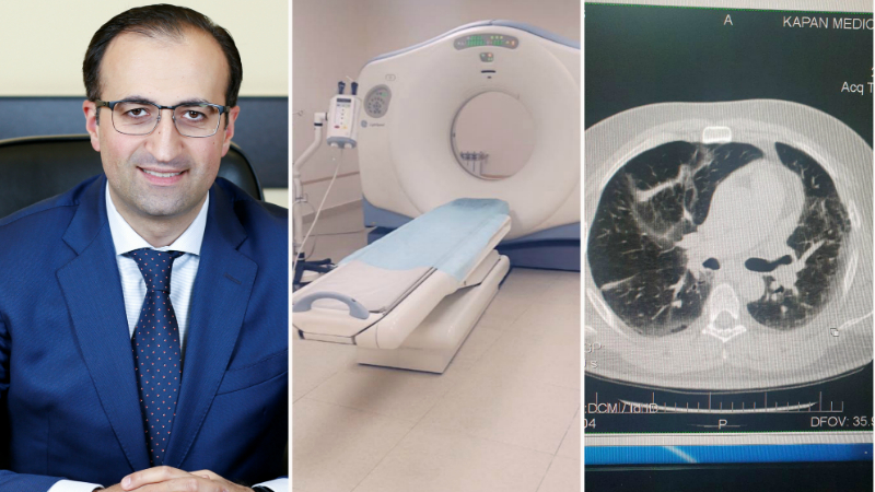 Այսօր արդեն սյունեցիները կարող են համակարգչային տոմոգրաֆիա անցնել ոչ միայն Գորիսի, այլ նաև Կապանի բժշկական կենտրոնում․ Արսեն Թորոսյան