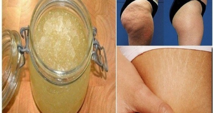 Աղ և շաքարավազ. Այս բաղադրատոմսը կօգնի ազատվել ցելյուլիտից