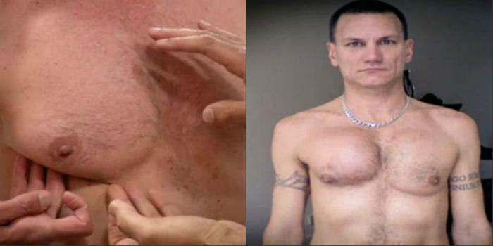 Տղամարդը միայն ձիգ կուրծք էր ցանկանում, սակայն վիրահատությունն անհաջող անցավ (լուսանկարներ)