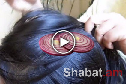 Դուք երբեք չեք կռահի՝ ինչու աղջիկը սոխի կտորները դրեց գլխին (տեսանյութ)