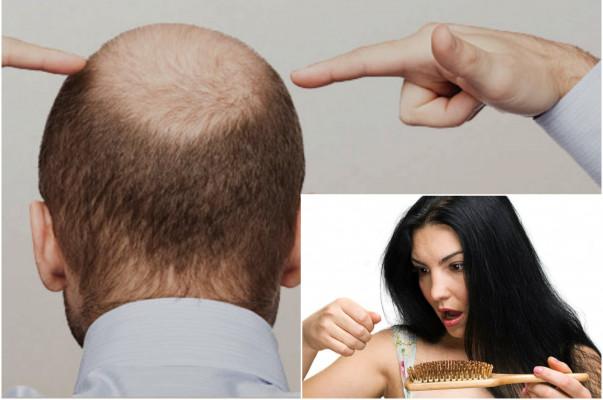 Կանանց և տղամարդկանց մոտ մազաթափության առաջացման պատճառներն ու բուժումը