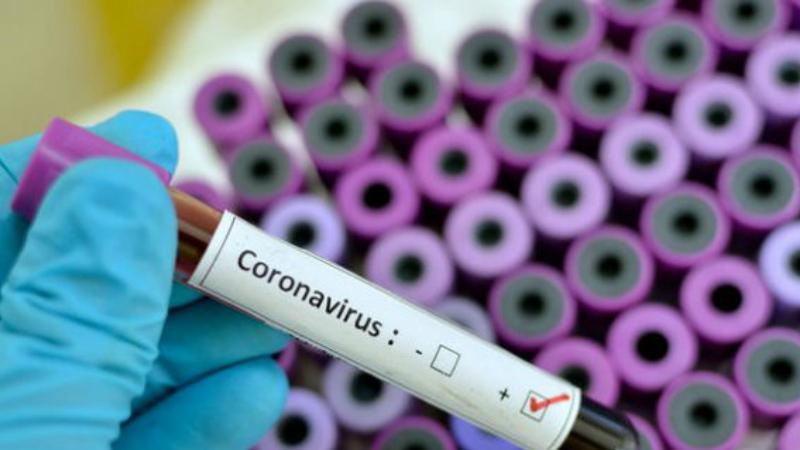 Հաստատվել է կորոնավիրուսով վարակման 2314 նոր դեպք