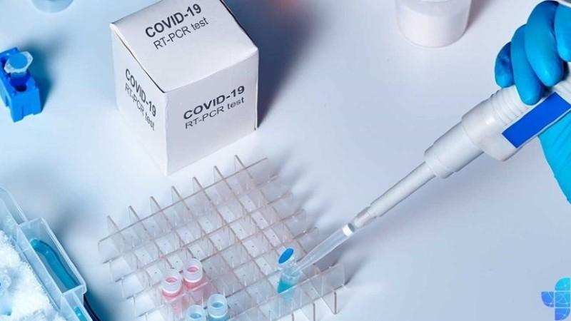 Հաստատվել է կորոնավիրուսային հիվանդության 2474 նոր դեպք