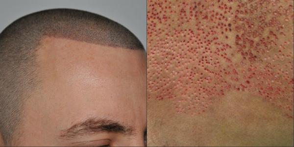 Կրծքավանդակի մազերը գլխին փոխպատվաստելուց հետո տղամարդը ցավալի տեսք ունի (լուսանկար)