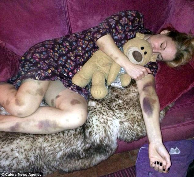 Արթնանալուց հետո կինը մարմնի վրա կապտուկներ է նկատել (լուսանկարներ)
