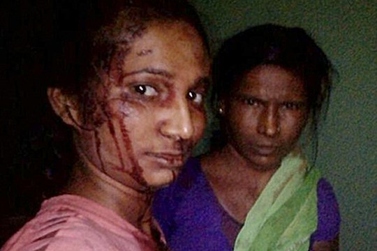 Աղջիկը հարձակվել է վագրի վրա և փայտով ծեծել