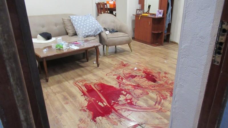 Գյումրիում դիմակավոր անձը ներխուժել է տուն, փող հափշտակել, կրակել տանտիրոջ ոտքին և փախել․ ՔԿ