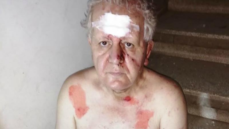 Բեյրութում պայթյունից տեղի ունեցած մեծ պայթյունի հետևանքով վիրավորների թվում է լիբանանահայ լրագրող Համո Մոսկոֆյանը