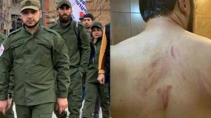 «Հեղափոխության պահապաններ»-ի անդամի նկատմամբ բռնությամբ խուլիգանության համար մեղադրանք է առաջադրվել 2 անձի. ՔԿ