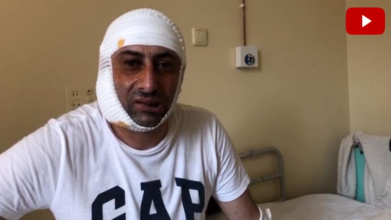 Մոսկվայում ադրբեջանցիների հարձակումից տուժած Էրիկը ծնոտի վիրահատություն է տարել․ նա մանրամասներ է պատմում (տեսանյութ)