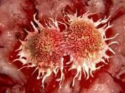 Ученые выяснили, почему раковые клетки не убивают сами себя