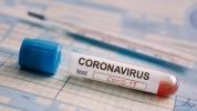 Արցախում կորոնավիրուսային հիվանդության նոր դեպքեր չեն գրանցվել
