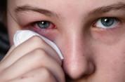 Պարզ միջոց աչքերի կարմրությունից ու հոգնածությունից ազատվելու համար