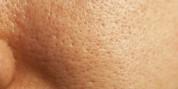 Ինչպե՞ս նեղացնել դեմքի ծակոտիները. 3 արդյունավետ միջոց