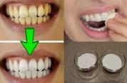 Պարզ միջոց կարճ ժամանակում դեղնած ատամները սպիտակեցնելու համար