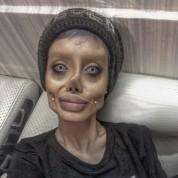 Անջելինա Ջոլիին նմանվելու համար իրանցի 19-ամյա աղջիկը 50 վիրահատություն է տարել
