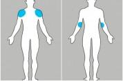 Քրոնիկ ու սուր ցավերի տեսակներ, որ առաջանում են մեկ տեղում՝ դրսևորվելով մարմնի այլ հատվածո...