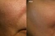 5 արդյունավետ բաղադրատոմս դեմքի ծակոտիներից ազատվելու համար