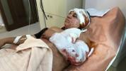 Ստեփանակերտում 10-ից ավելի վիրավոր կա, ներառյալ՝ երեխաներ ու կանայք. Արցախի ՄԻՊ