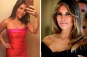 Մելանյա Թրամփին նմանվելու համար ամերիկուհիները սկսել են պլաստիկ վիրահատությունների դիմել